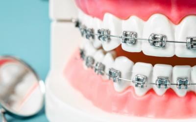 Zdejmowany aparat ortodontyczny – dla kogo?