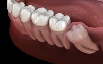 Kiedy mamy do czynienia z tzw. zębem zatrzymanym?
